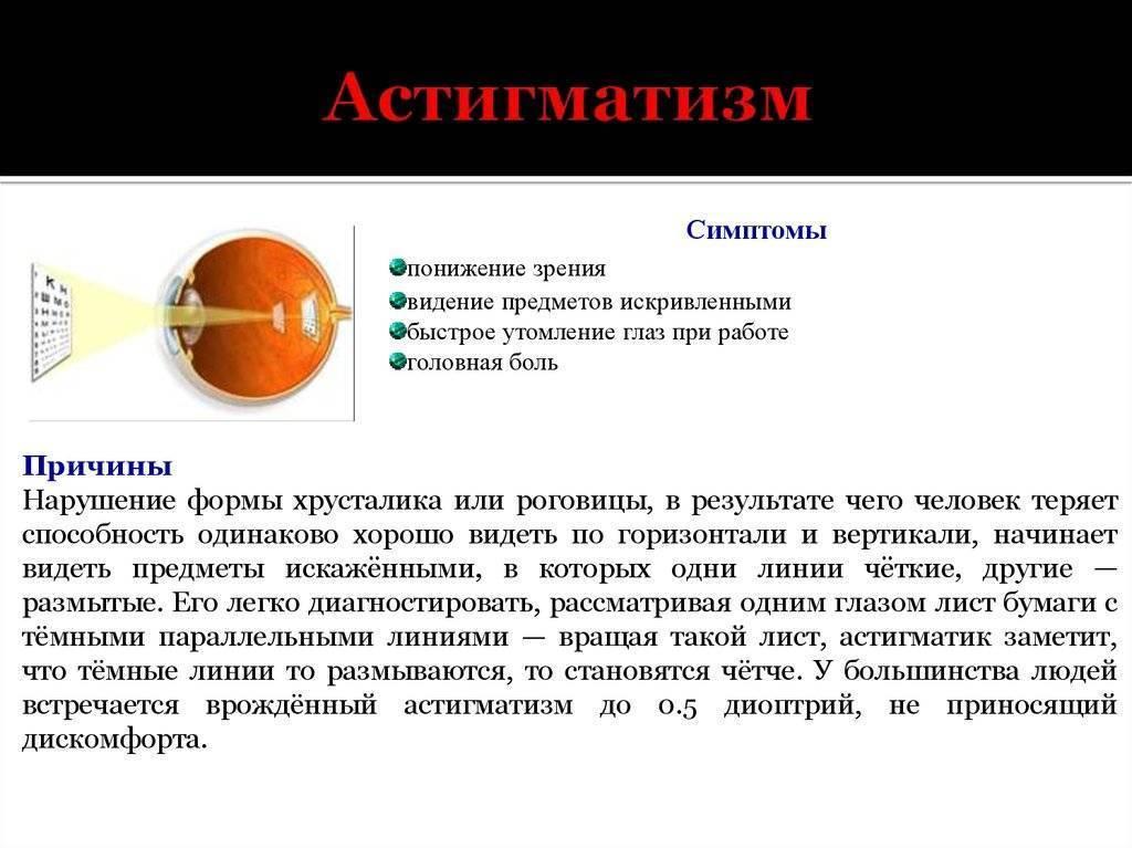 Детский астигматизм: особенности патологии, причины появления и методы лечения