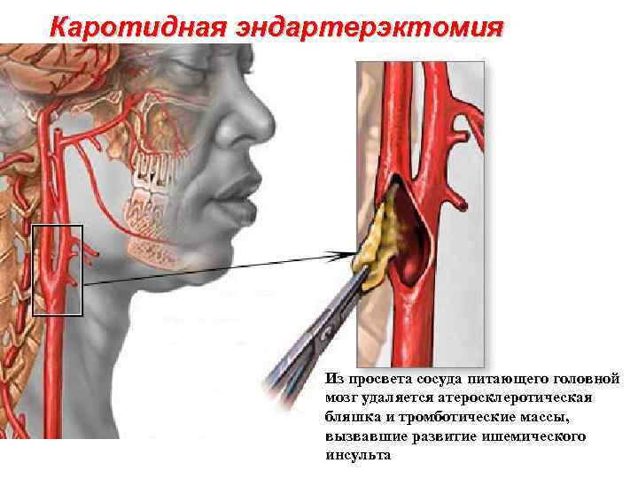 Способ профилактики инсульта — каротидная эндартерэктомия: особенности проведения, восстановление, осложнения