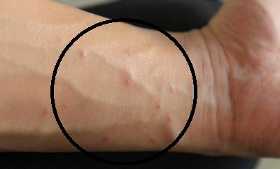 Чесотка: что это такое, симптомы, первые признаки заболевания у взрослых, способы лечения