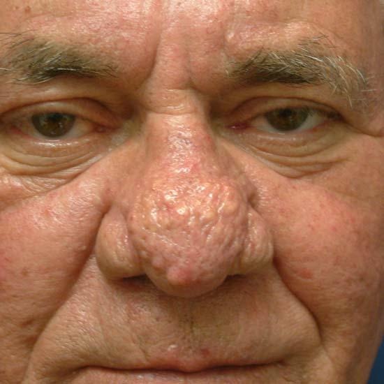 Опухоли пазухи и полости носа