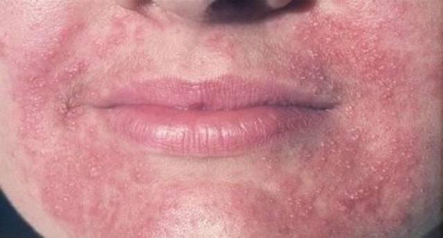 Методы лечения и профилактика перианального дерматита