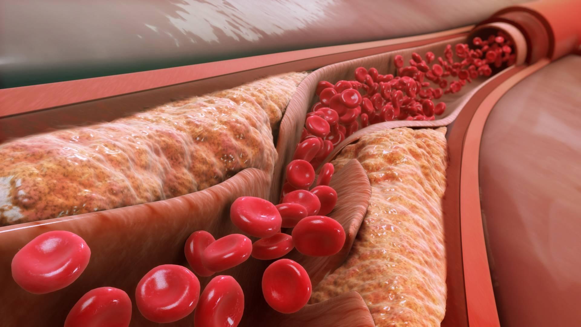 атеросклероз коронарных сосудов