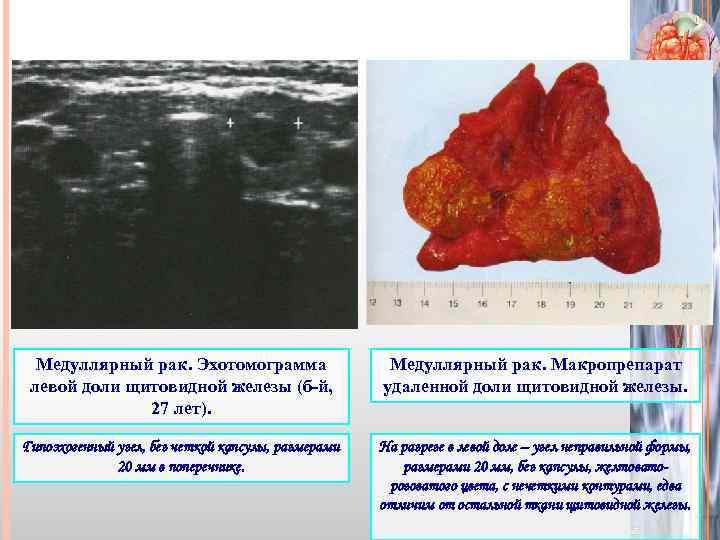 Железистый ракщитовидной железы