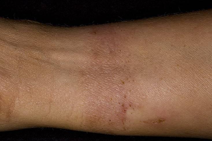 Дерматит — фото с описанием, лечение, симптомы и причины