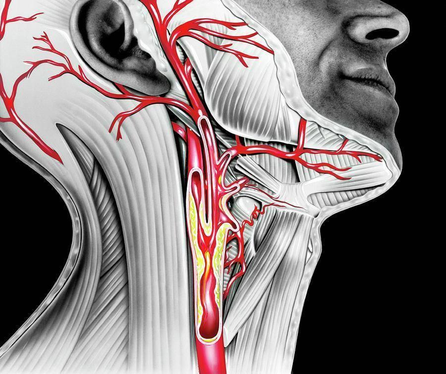 атеросклероз внечерепных отделов брахиоцефальных артерий со стенозом