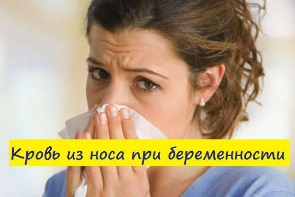 Почему идет кровь износа при беременности-советы в календаре беременности на babyblog.ru