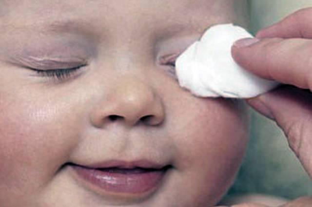 Что делать, если закисает глазик у новорожденного