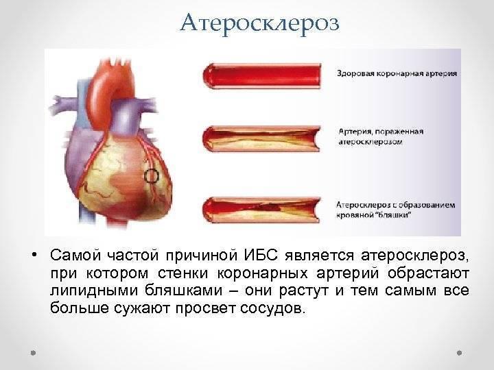 Причины, симптомы, диагностика и методы лечения атеросклероза