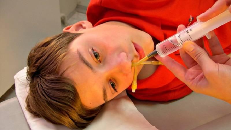Лечение гайморита в домашних условиях у взрослых народными средствами