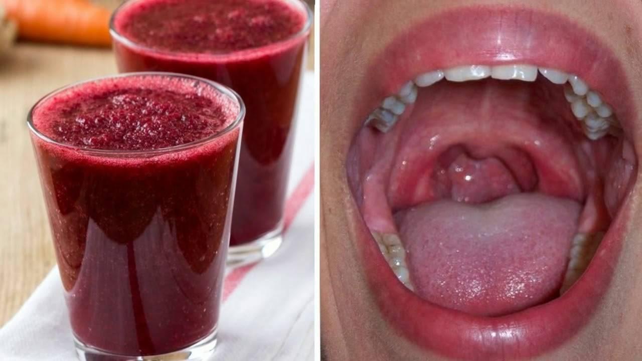 Как снять отек горла при ангине ― эффективные методы