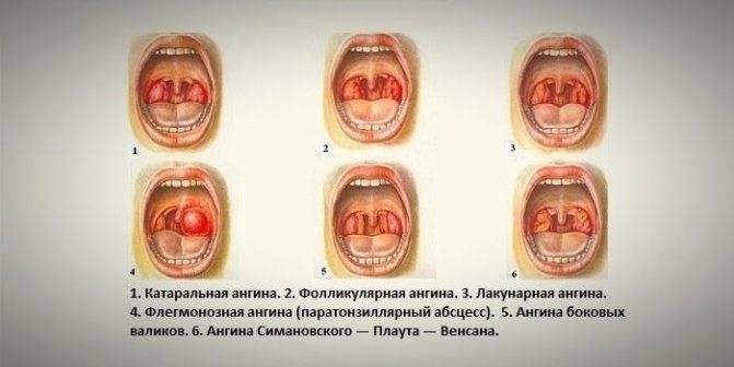 Ангина венсана (язвенно-пленчатая ангина): фото, симптомы и лечение заболевания
