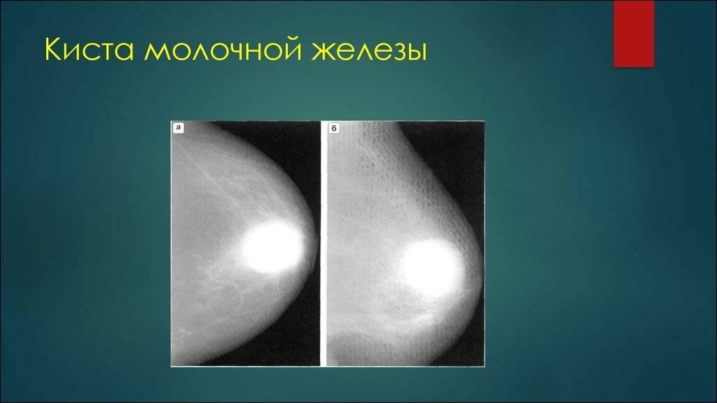 На узи нашли кисту молочной железы, что делать? когда нужна биопсия молочной железы