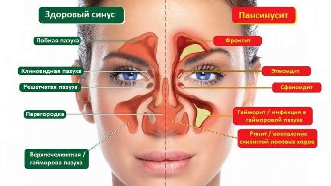 Причины головной боли при гайморите, симптомы, методы лечения