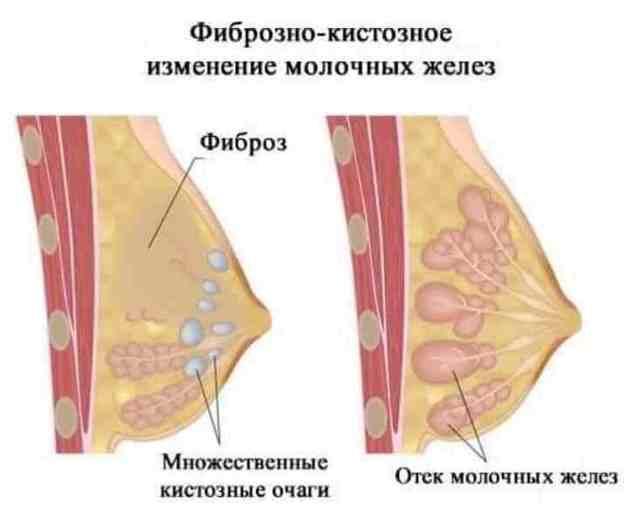 При кормлении грудью болит мастопатия
