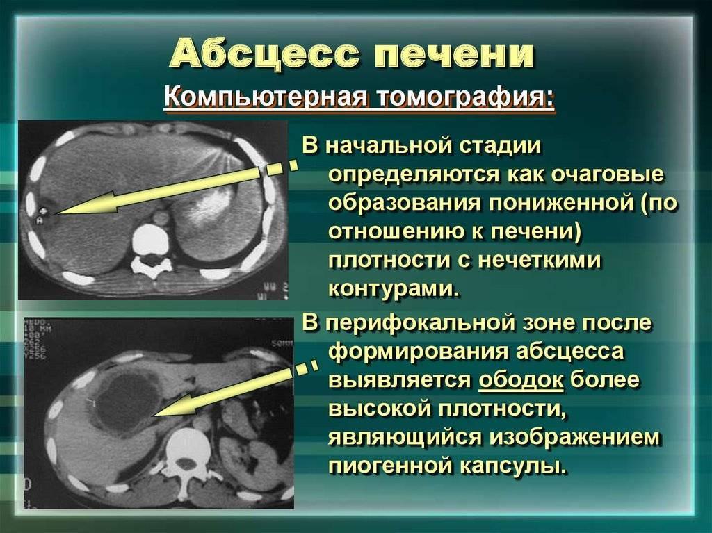 Абсцесс печени: что это такое, лечение, симптомы и причины