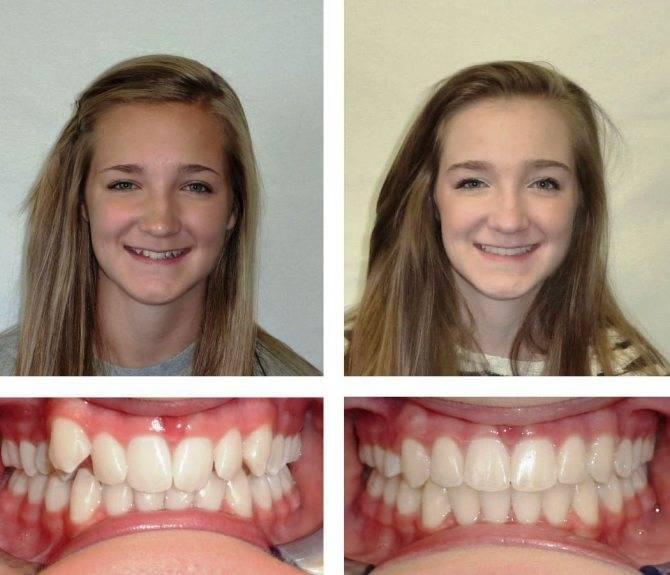Этапы лечения брекетами: ношение по неделям и месяцам, как подтягивают конструкцию, за сколько выравниваются зубы после установки