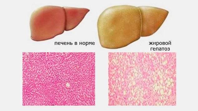 Диффузные изменения паренхимы печени по типу стеатоза: причины, симптомы и лечение