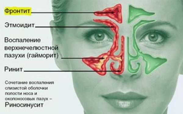 Виды, симптомы и лечение левостороннего гайморита
