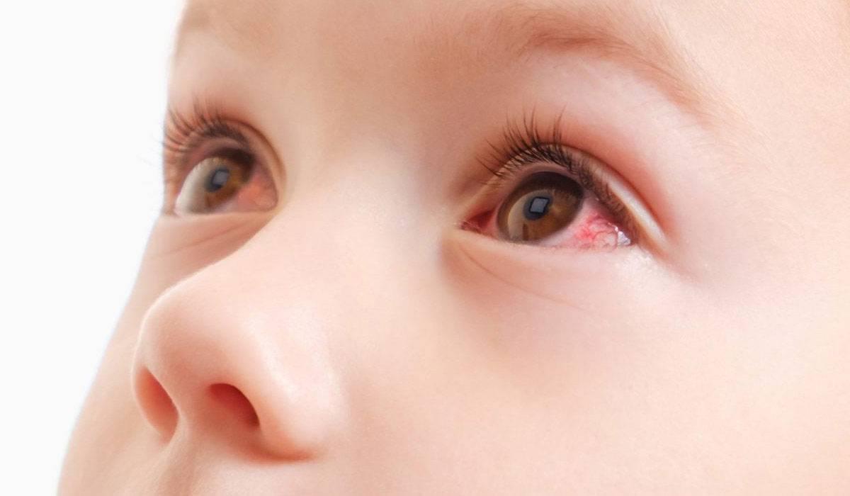 Конъюнктивит у ребенка 2 года лечение комаровский - лечение глаз