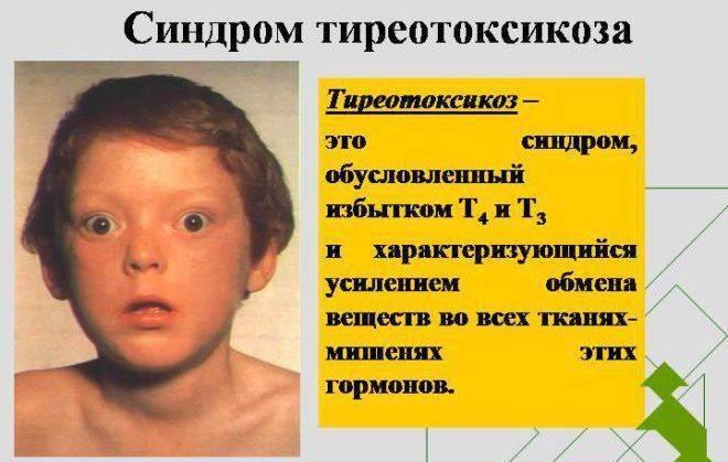увеличена щитовидка у ребенка 6 лет