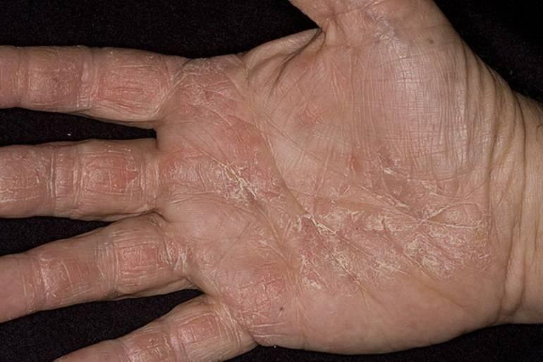 псориаз на руках симптомы