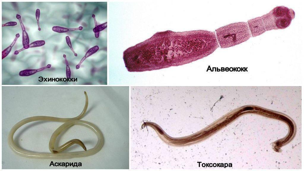 Какие паразиты живут в легких человека и насколько это опасно