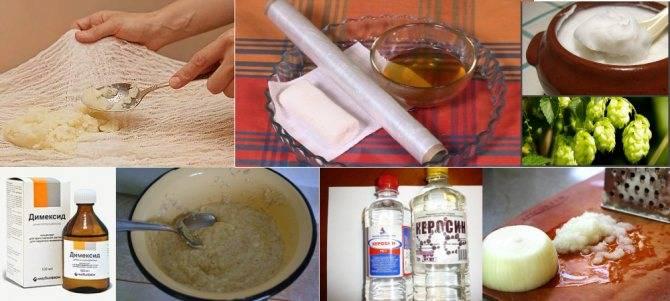 Компресс из водки при ангине