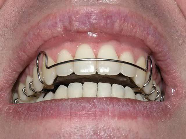 Принцип действия ортодонтических пластин для выравнивания зубов