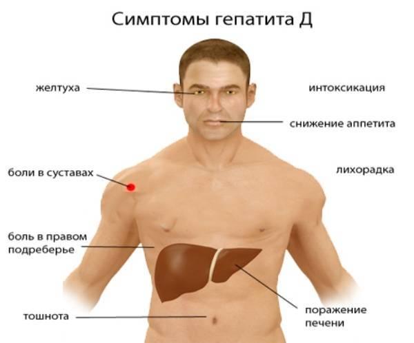 вирус гепатита д