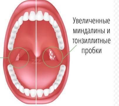 болит горло с правой стороны больно глотать