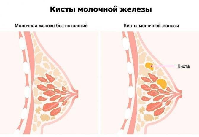 от чего появляются кисты в молочных железах