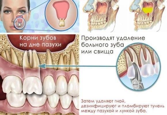 Могут ли болеть зубы при гайморите, почему болит челюсть