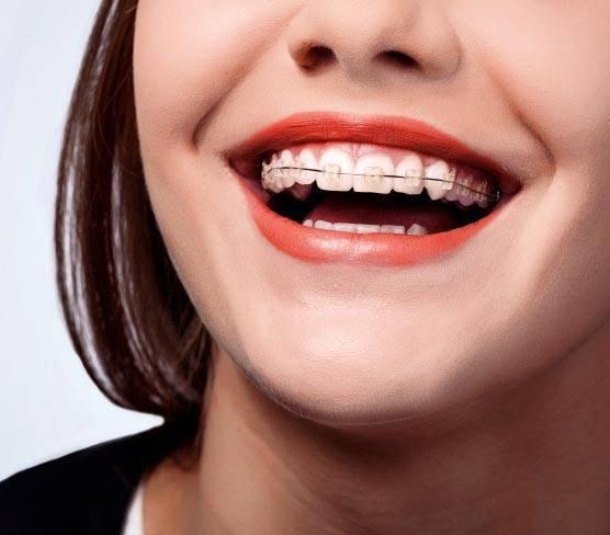 Больно ли ставить брекеты — почему болят зубы после установки конструкции
