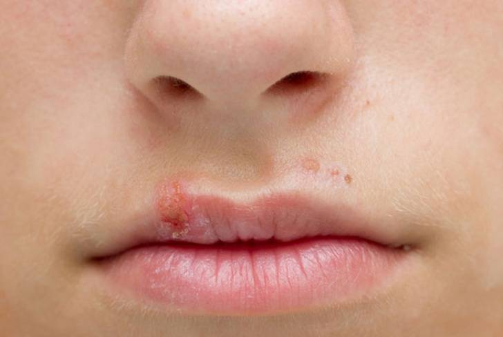 Какой врач лечит герпес на губах