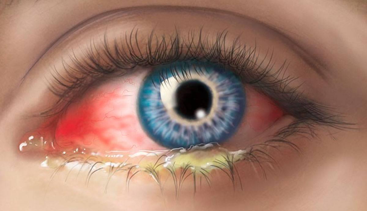 липкие выделения из глаз