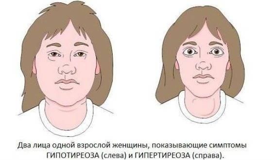 гиперфункция щитовидной железы симптомы у женщин