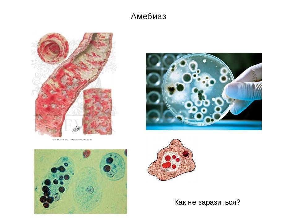 Амебиаз — большая медицинская энциклопедия