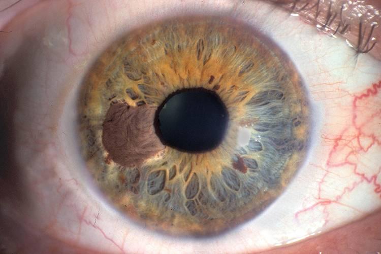 опухоль на глазу