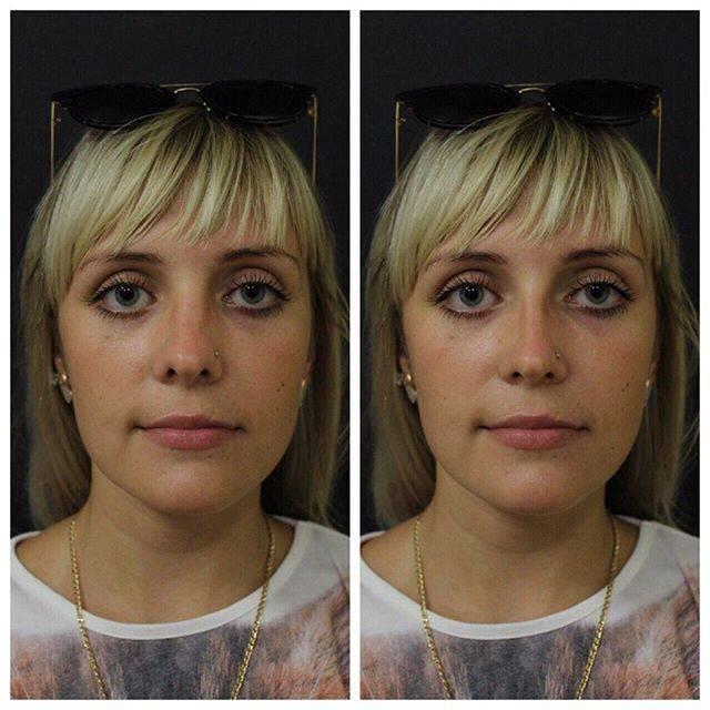Операции по исправлению перегородки носа: хирургическая, лазером