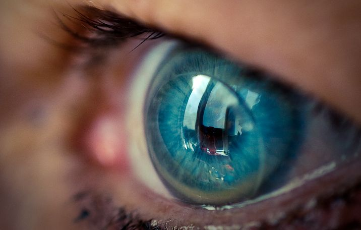 плюсы и минусы контактных линз