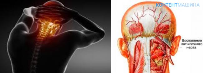 невралгия головы симптомы