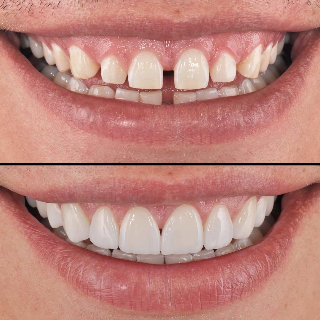 исправление кривых зубов винирами