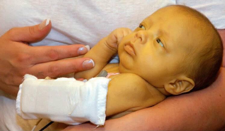 Желтушка у новорожденных (гемолитическая, физиологическая желтуха) – причины и последствия, лечение