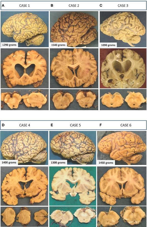 Токсическая энцефалопатия головного мозга при алкоголизме