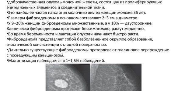 Фиброма молочной железы: причины, симптомы, диагностика и лечение