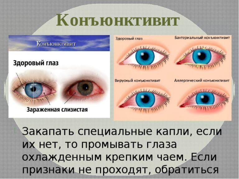 вирусный коньюктивит глаз лечение у детей лечение