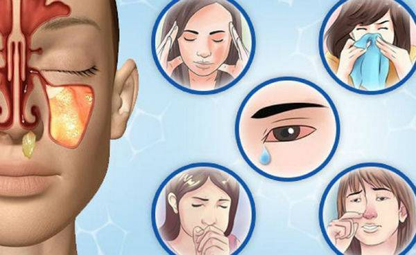 Почему нет выделений из носа при гайморите