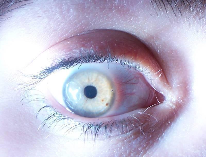 пятно на глазу у человека