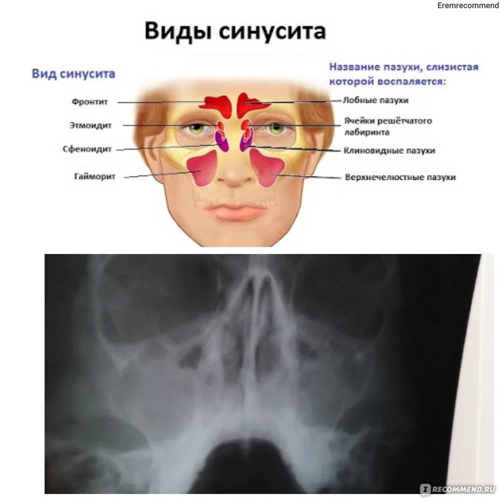 Двухсторонний гайморит: диагностика и основные принципы лечения