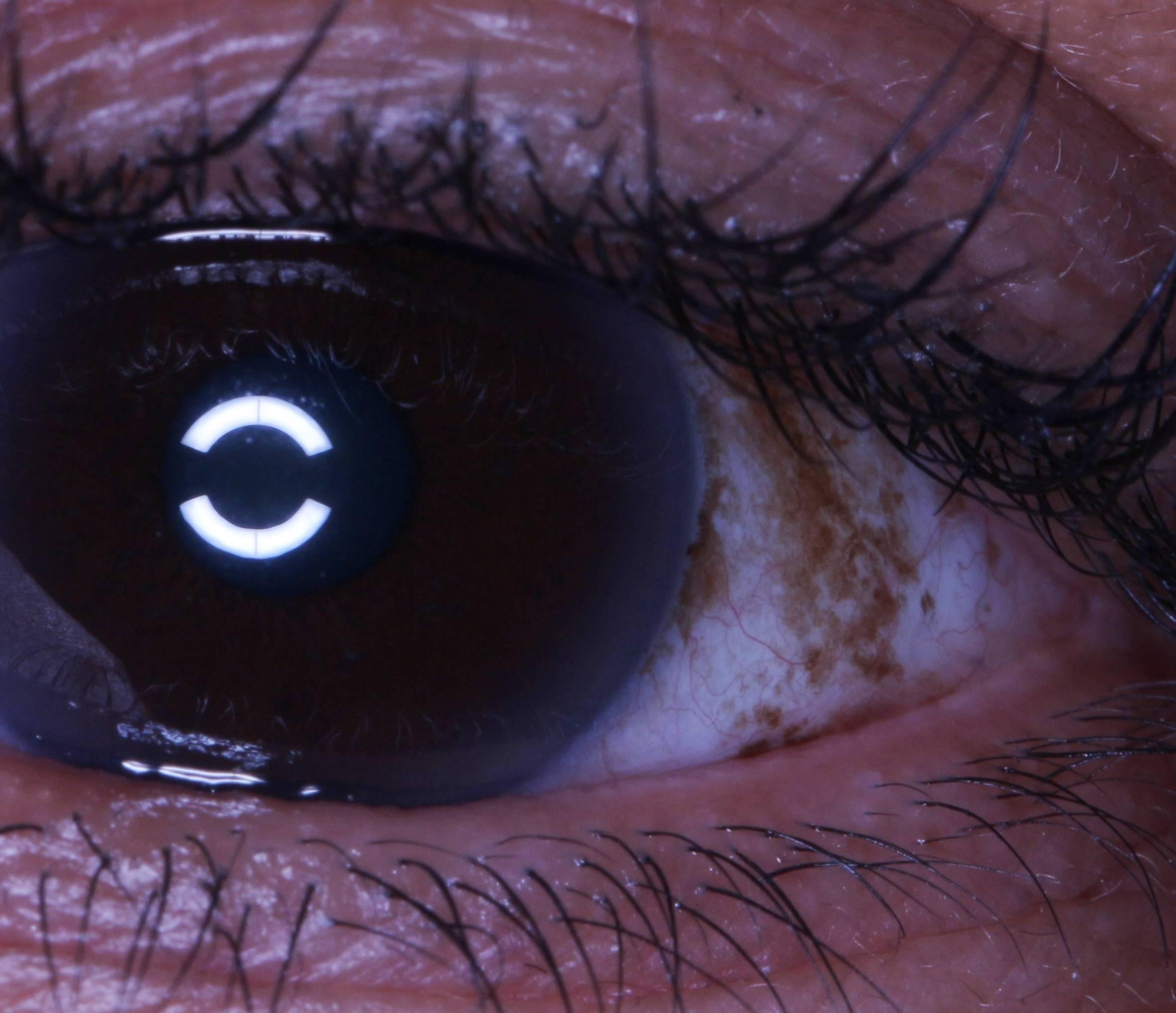 """Пингвекула глаза и её эффективное лечение (капли и операция по удалению) - moscoweyes.ru - сайт офтальмологического центра """"мгк-диагностик"""""""